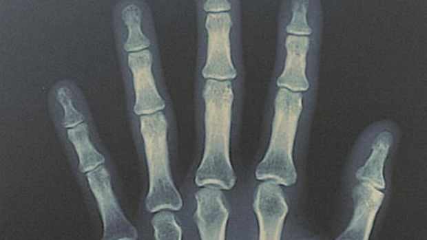 tryan-skeletonrmx.jpg